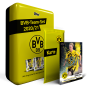 BVB-Team-Set – Mit nummerierter Parallel-Karte gratis!